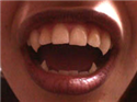 Custom fangs.png